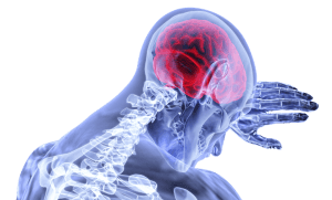 Traumatic Brain Injury And Personal Injury Claims In Florida